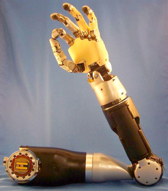Thought-controlled prosthetic arm is about to change everything