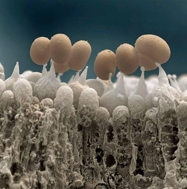 Amazing Unseen Snapshots Taken Via Electron Microscope