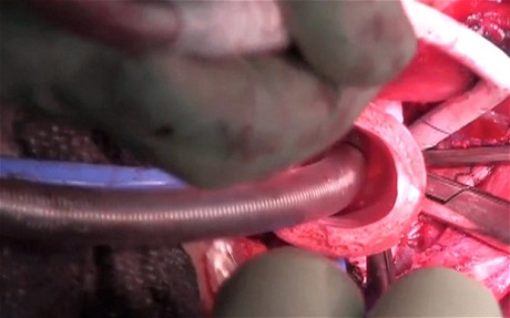Surgeons Carried Out World's First Man-Made Organ Transplant