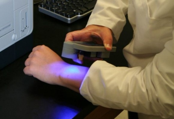 iPhone 4 & A Sensor Tattoo Creates Diabetic Blood Monitor
