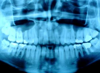 Dental X-Rays More Likely To Cause Most Common Brain Cancer [STUDY]