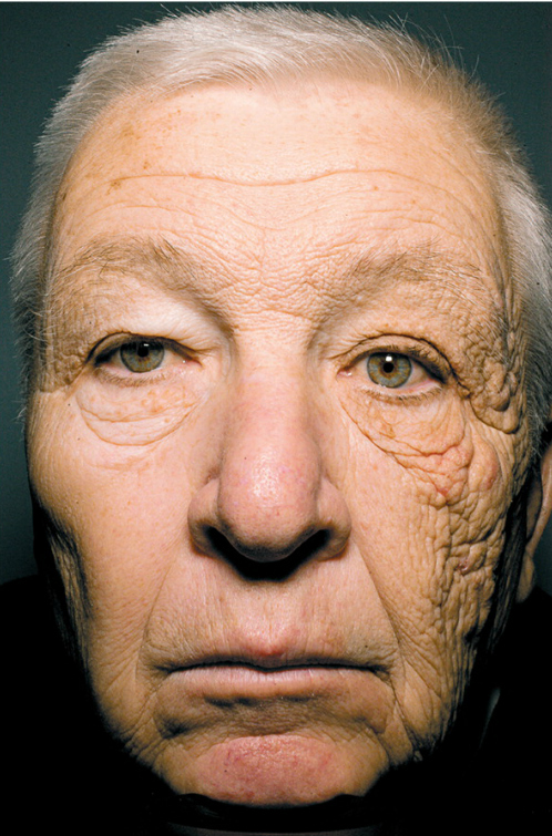 Shocking Proof Of Sun's Aging Effect On Skin [PHOTO]