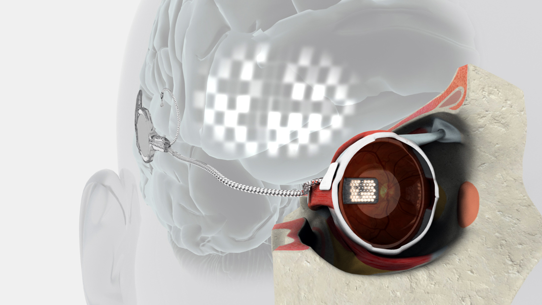 Bionic Eye Lets Blind Woman Experience Vision