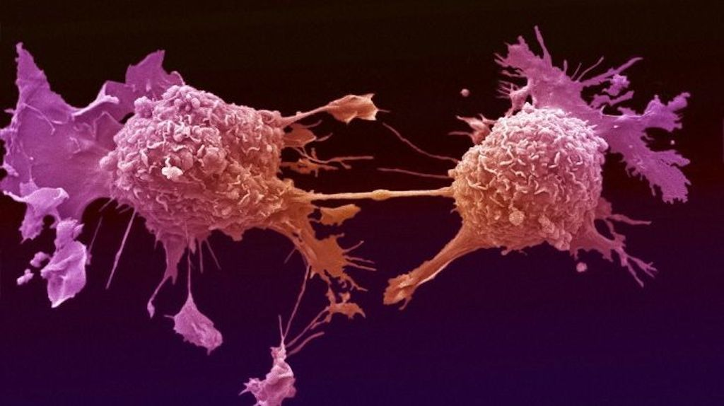 Nanoparticles Cause Cancer Cells To Die And Stop Spreading