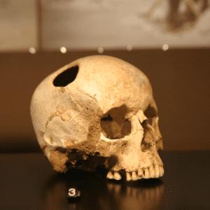 trepanation, human skull