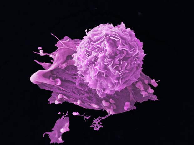 Scientists Discover New Cancer Treatment That Causes Cells To Explode
