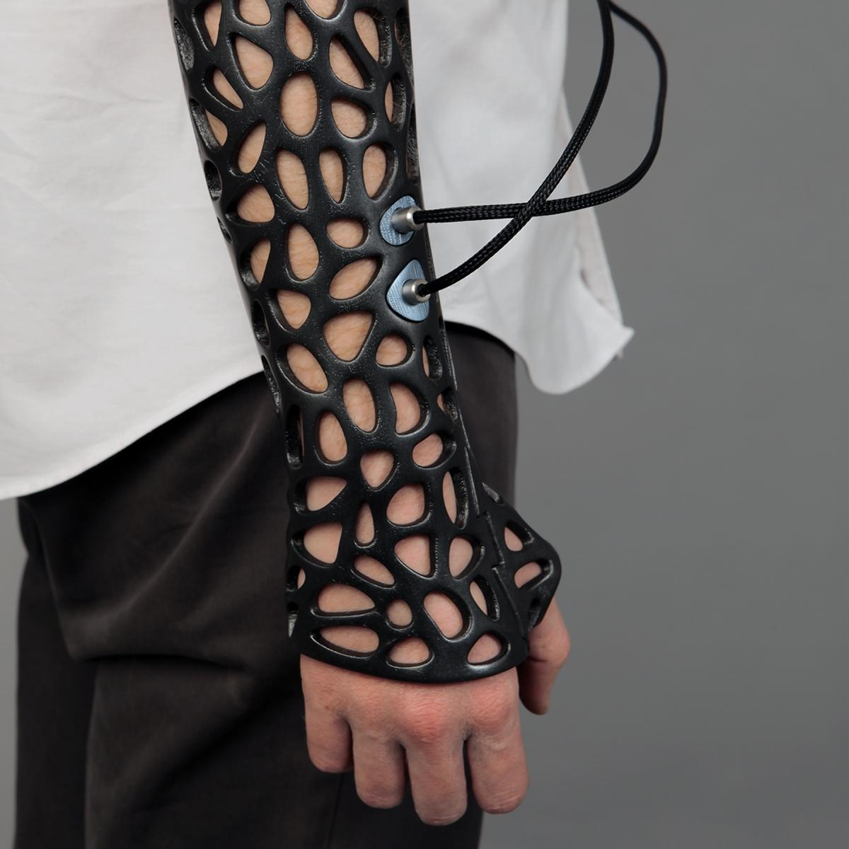 3D Printed Plastic Cast Speeds Bone Recovery Using Ultrasound