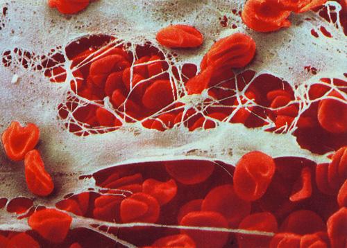 Skin tissue