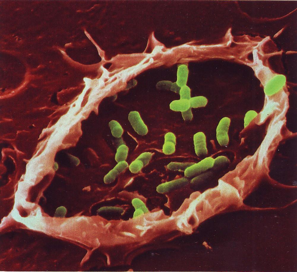Bacteria Trap