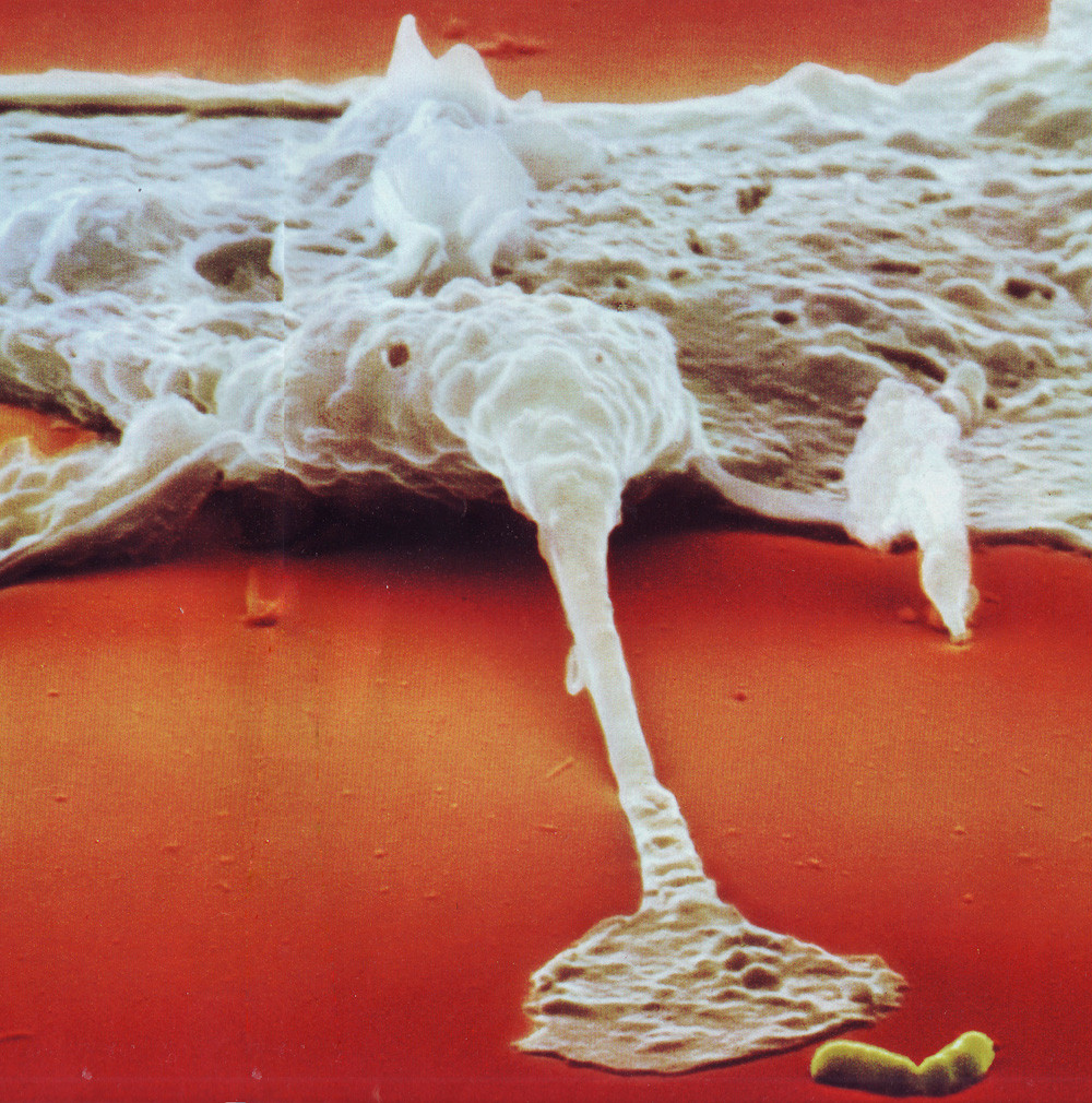A macrophage reaches out