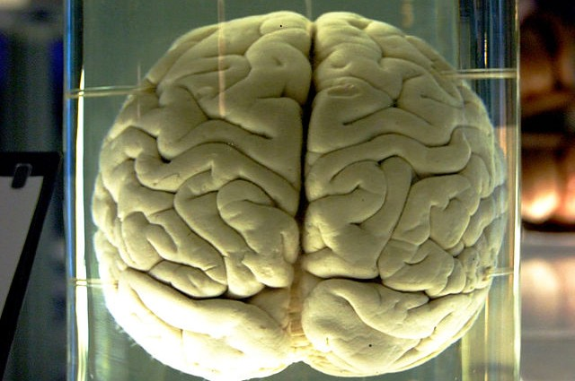 Do You Really Only Use 10 Percent of Your Brain?