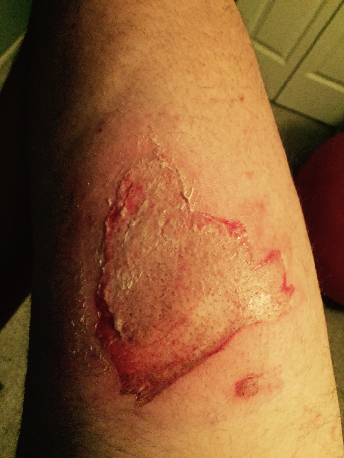 iphone 6 burned leg