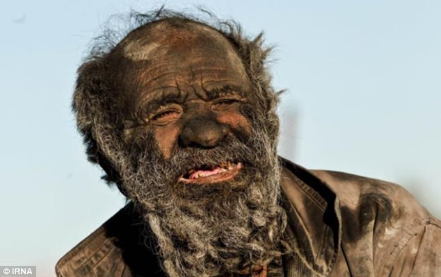This Man Hasn't Bathed In 60 Years 1