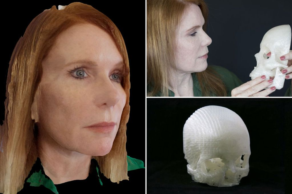 This Man 3D-printed His Wife's Tumor — and Saved Her Sight 1