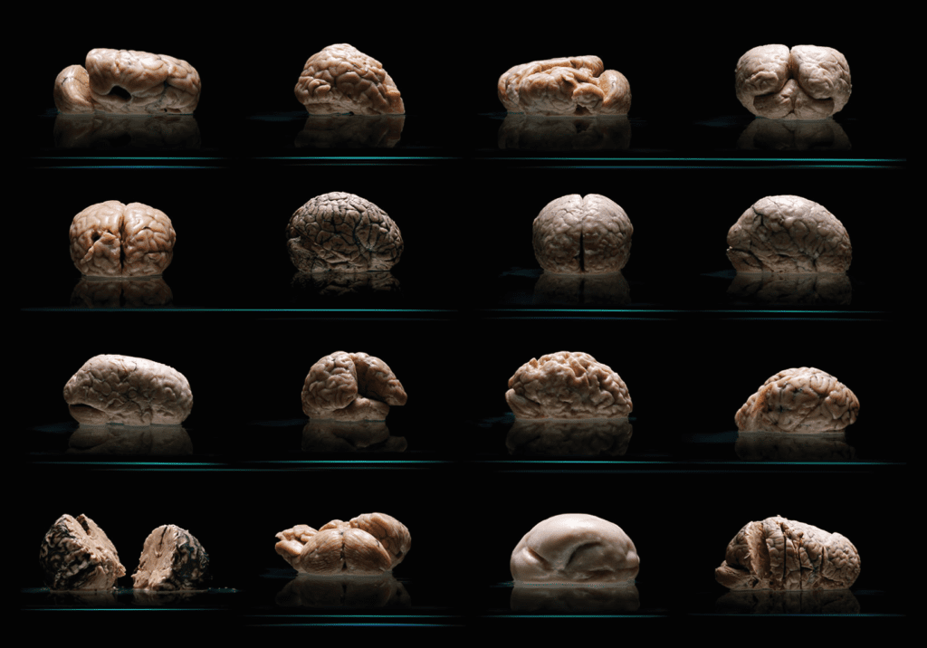 Human brains, Adam Voorhes, foldless brain, brain with no folds, brain with no wrinkles, no wrinkles brain, no folds brain, new discoveries, science, biology, health, brains, human brains, University of Texas, Austin State Mental Hospital