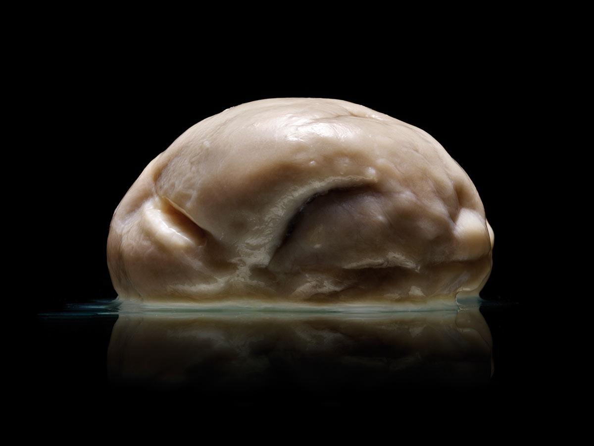 Adam Voorhes, foldless brain, brain with no folds, brain with no wrinkles, no wrinkles brain, no folds brain, new discoveries, science, biology, health, brains, human brains, University of Texas, Austin State Mental Hospital