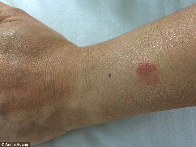 Apple Watch Burns Woman After It 'Overheated' In The Sun, Apple Tells Her She's 'Wearing it Wrong' 1