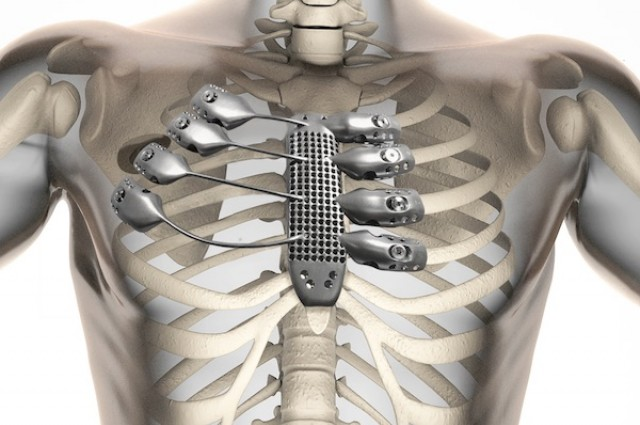 Surgeons Implanted 3D-Printed Titanium Ribcage In A Cancer Patient
