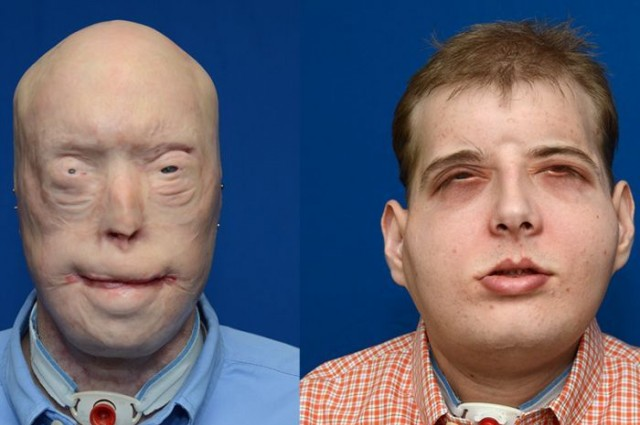 Firefighter Receives Most Extensive Face Transplant In History 1
