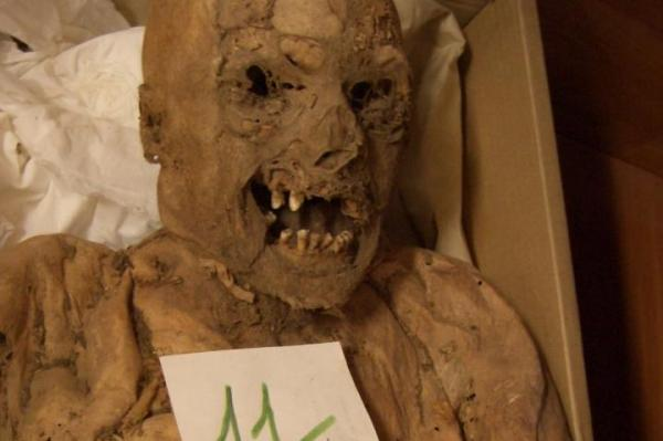 A gene mutation associated with Colon cancer discovered in a Hungarian mummy