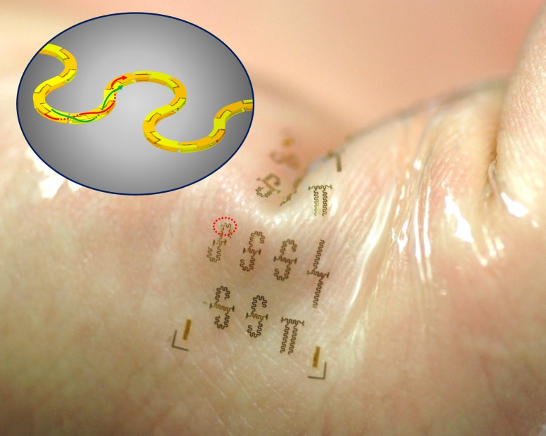 Engineers have created the world's fastest stretchable, wearable integrated circuits