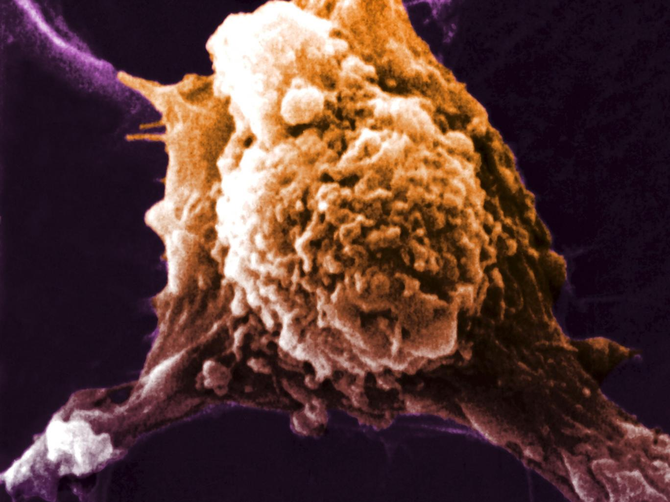Scientist claim they have created a 'Universal cancer vaccine'