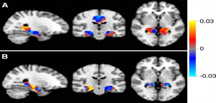 Artificial intelligent MRI's can aid in diagnosis of Alzheimer's