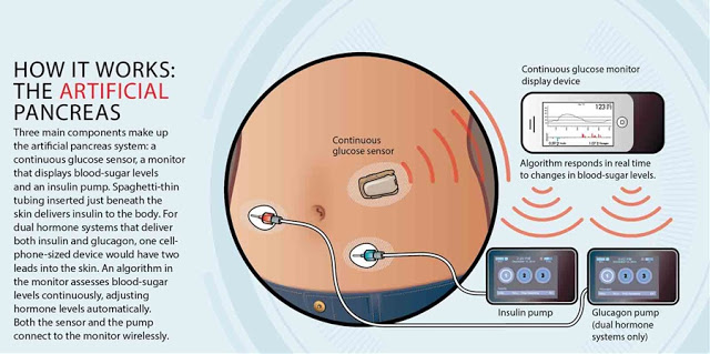 Researchers have developed an artificial pancreas that will be available by 2018 1