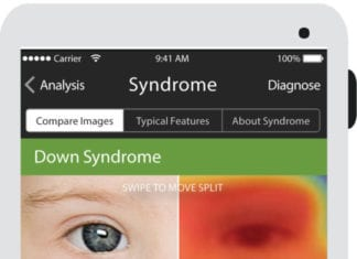 Face2Gene App can now diagnose rare genetic conditions