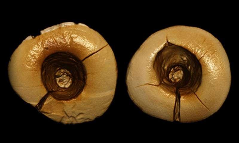 ancient-dental-work-oldest-fillings