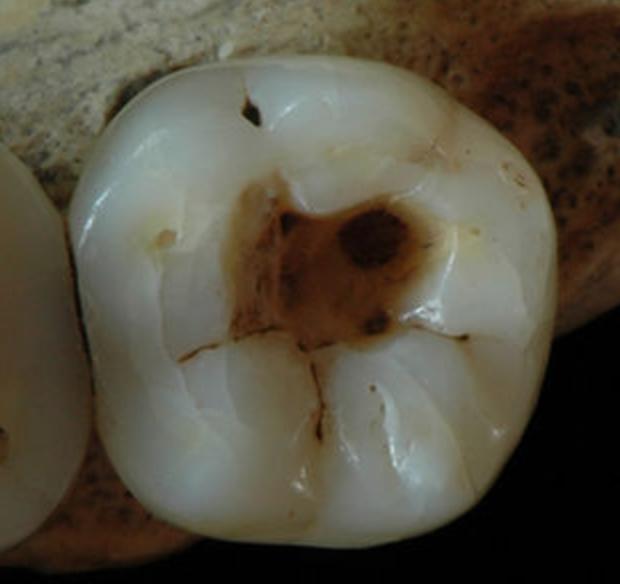 ancient-dental-practices-oldest-work