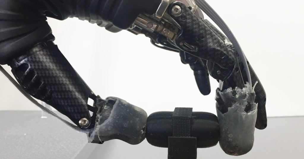 Pain Is Weird. Making Bionic Arms Feel Pain Is Even Weirder