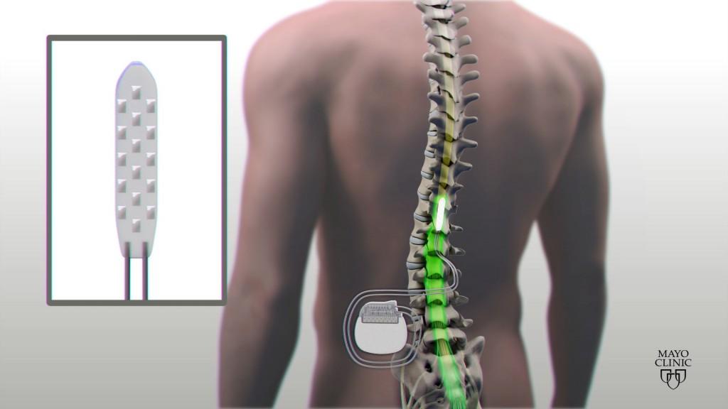 paraplegic electrical device