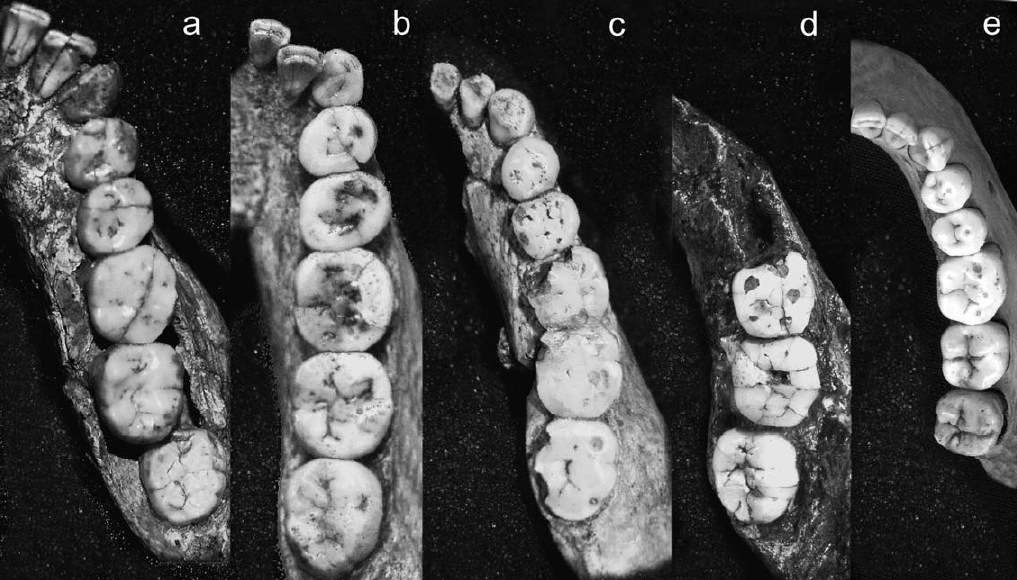 tooth comparison