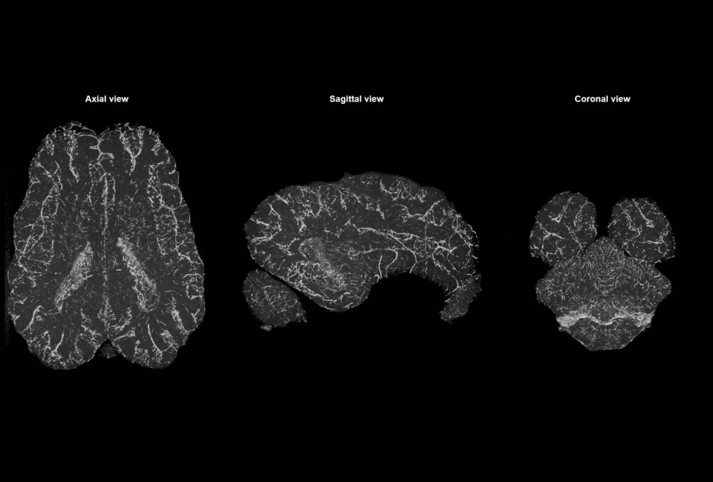 CT scan of a dead pig brain as it was hooked up to the scientists' device. (Credit: Vrselja et al. / Nature)